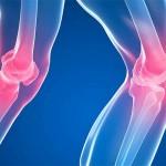 Fucoidan Anti Inflammatory Helps Arthritis