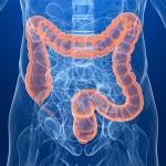 Fucoidan Kills Colon Cancer Cells