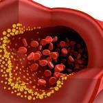 Fucoidan Health Alternative for Triglycerides